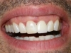 Tooth Whitening & Procera Crown