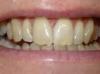 In-Line Clear Brace after 10 months then Composite Bonding