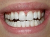 In-Line and Tooth Whitening